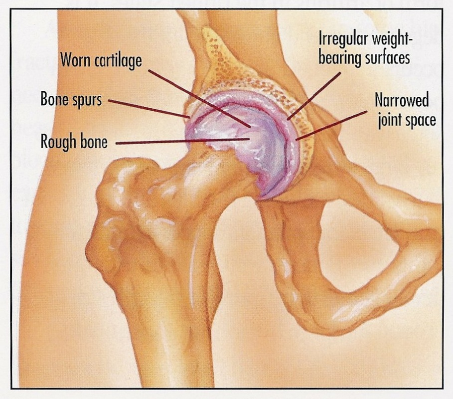 Hip And Knee Arthritis